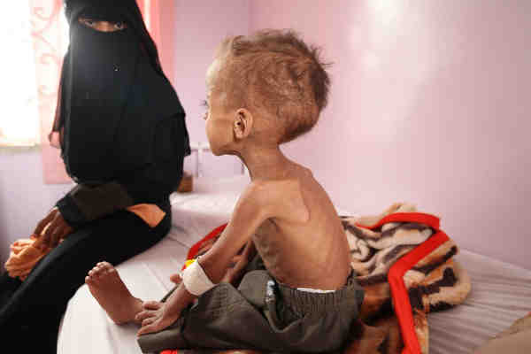Faisal, 18 months old is treated for severe acute malnutrition at Sabeen hospital in Yemen's capital Sana'a. Photo: UNICEF/Yasin