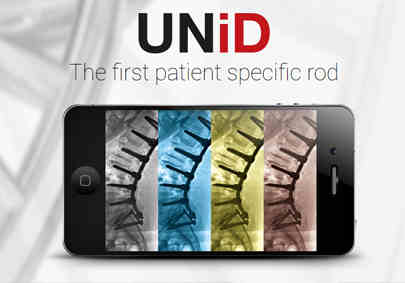 UNiD Patient-Specific Spinal Rod