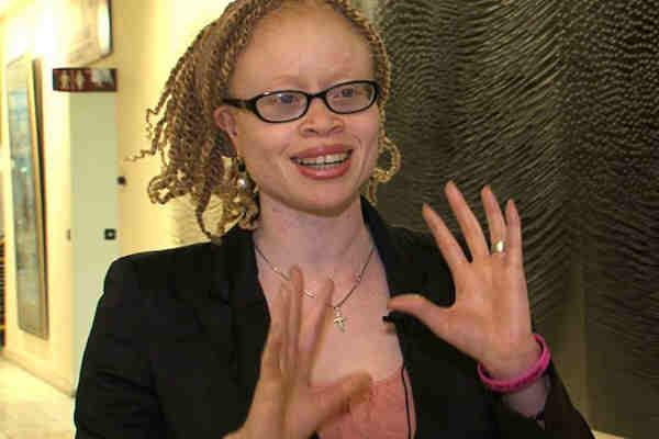 Independent Expert on Albinism Ikponwosa Ero. Photo: OHCHR / Christine Wambaa